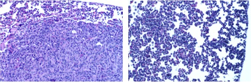 Rita Allen Foundation Scholar Robert Weinberg and his research team have shown that a transcription factor called Twist1, known for regulating embryonic development, also plays a key role in breast cancer metastasis. The image on the left shows a metastatic nodule in the lung of a mouse with a breast tumor. Knocking down the expression of Twist1 in breast tumor cells prevents metastasis—the image on the right shows normal lung tissue. (Images: Jing Yang)
