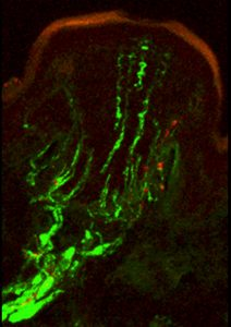 The sensitivity of the star-nosed mole's tactile system is mediated by tens of thousands of specialized touch organs, called Eimer's organs, which stud the rays of its star. Shown here is a confocal micrograph of a single Eimer's organ, with a neural cytoskeletal protein stained green and substance P, a touch- and pain-associated neuropeptide, stained red. (Image: Kristin Gerhold and Diana Bautista, UC Berkeley)